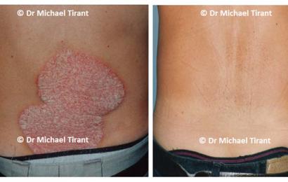 Độc đáo hướng điều trị bệnh vảy nến bằng phương pháp Dr. Michaels