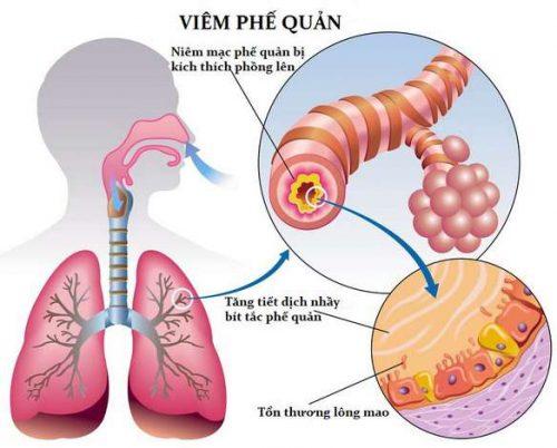 Mẫu bệnh án nội khoa hô hấp viêm phế quản