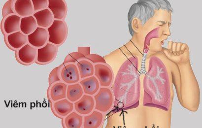Mẫu bệnh án nội khoa hô hấp viêm phổi
