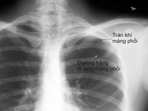 Hình ảnh trong bệnh án nội khoa tràn khí màng phổi