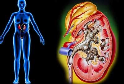 Bệnh án nội khoa hội chứng thận hư ảnh hưởng đến sức khỏe người bệnh