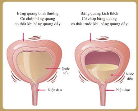 Hình ảnh bệnh án nội khoa viêm bàng quang
