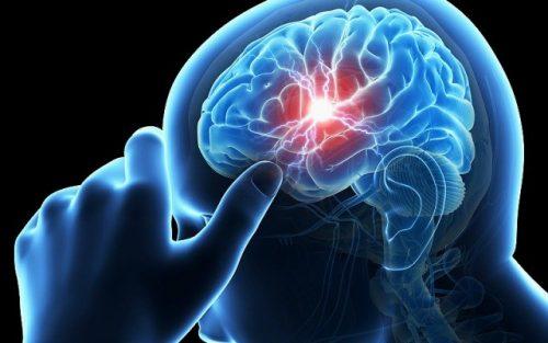 Bệnh án nội khoa tai biến mạch máu não