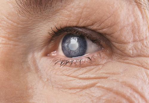 Đục thủy tinh thể là căn bệnh thường gặp ở người cao tuổi