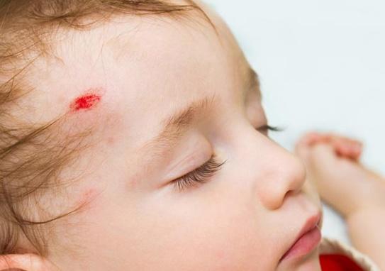 Dấu hiệu giúp phát hiện chấn thương sọ não ở trẻ em