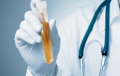 Bệnh án nội khoa nhiễm trùng tiểu
