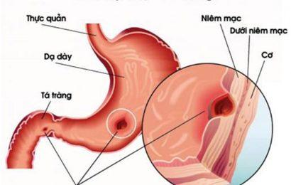 Nguyên nhân nào gây ra bệnh loét dạ dày tá tràng?