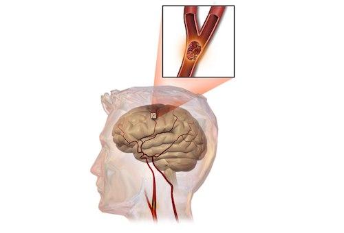 Chuyên gia lý giải bệnh xuất huyết não là bệnh gì,
