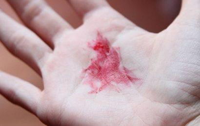 Nguyên nhân gây chảy máu do tăng áp lực tĩnh mạch cửa