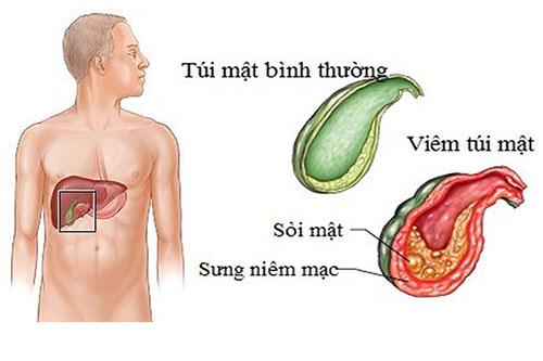 Sỏi mật: Nguyên nhân, dấu hiệu và phương pháp điều trị sỏi mật