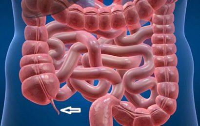 Bài giảng tổng quan về viêm ruột thừa