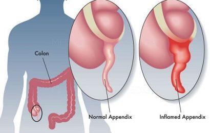 Viêm ruột thừa là gì? Nguyên nhân và dấu hiệu nhận biết bệnh