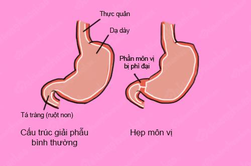 Hẹp môn vị nếu không được điều trị sớm gây ảnh hưởng nghiêm trọng đến sức khỏe