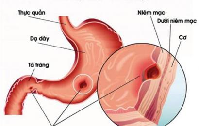 Nhận biết những dấu hiệu chảy máu do viêm loét dạ dày tá tràng