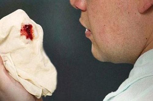 mức độ mất máu của bệnh nhân phụ thuộc vào nhiều yếu tố khác nhau