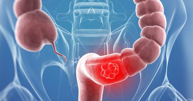 5 dấu hiệu sớm cảnh báo bạn đã mắc ung thư trực tràng