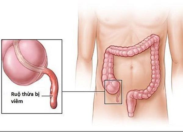 Bệnh án ngoại khoa viêm ruột thừa