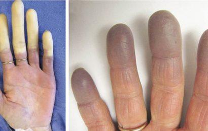 Hội chứng Raynaud có nguy hiểm không ?