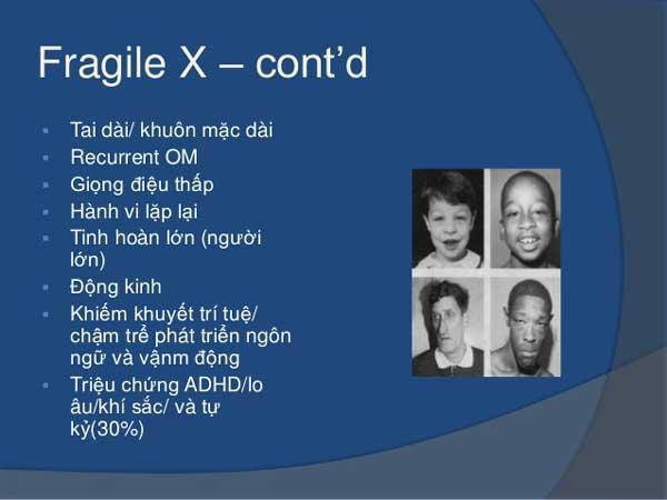 Fragile X và những dấu hiệu nhận biết