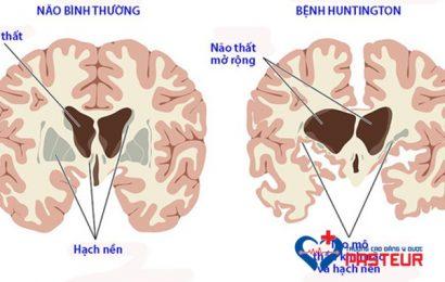 Bệnh học nội khoa: Bệnh Huntington