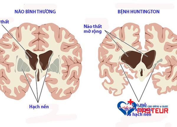 Triệu chứng nhận biết bệnh Huntington