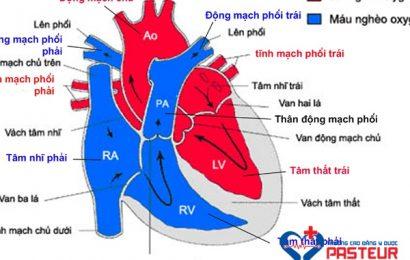 Những điều cần biết về dị tật tim bẩm sinh Ebstein
