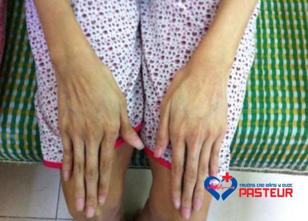 Tìm hiểu về hội chứng Marfan trong y học