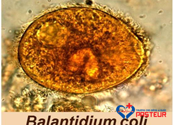 Đặc điểm sinh học của trùng lông Balantidium coli