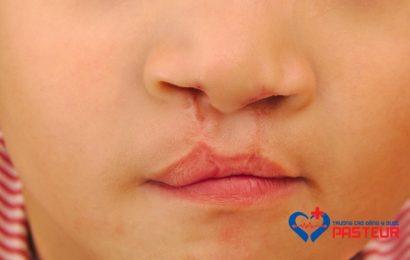Hội chứng Stickler và bệnh di truyền khớp-mắt ở trẻ em