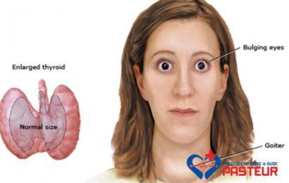 Tìm hiểu về bệnh Basedow và các phương pháp điều trị