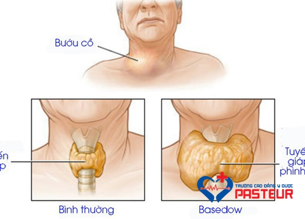 Những dấu hiệu khi mắc bệnh Basedow