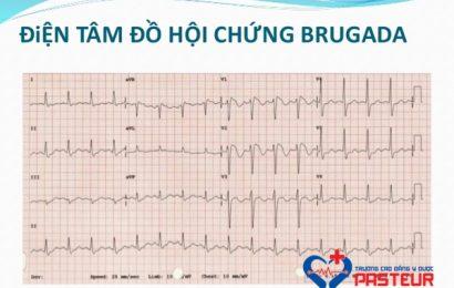 Hội chứng Brugada và những điều cần biết