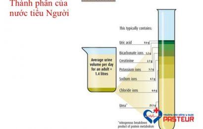 Cùng tìm hiểu về các tính chất chung của nước tiểu (Phần 2)