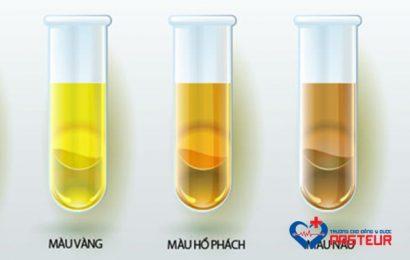 Cùng tìm hiểu về các tính chất chung của nước tiểu (Phần 1)