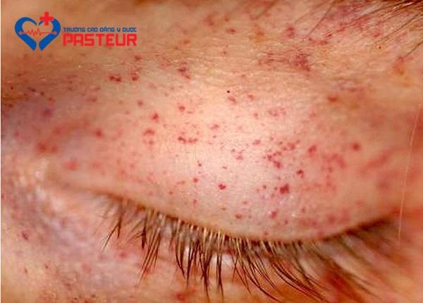 Nguyên nhân gây bệnh scorbut là gì?