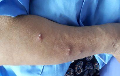 Bệnh Whitmore: Dấu hiệu và cách điều trị