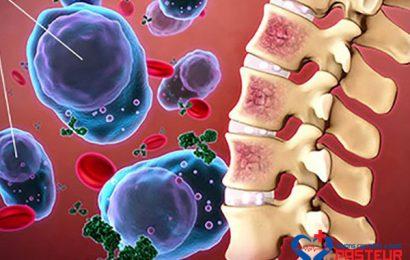 Những điều cần biết về bệnh viêm tủy xương