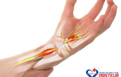 Phương pháp xử trí khi bị hội chứng ống cổ tay