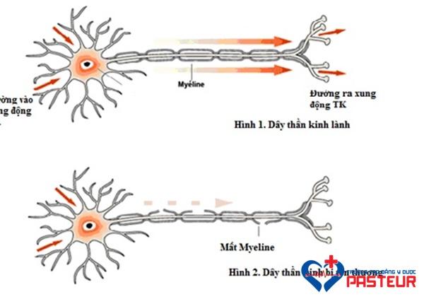 Bệnh viêm đa dây thần kinh là gì