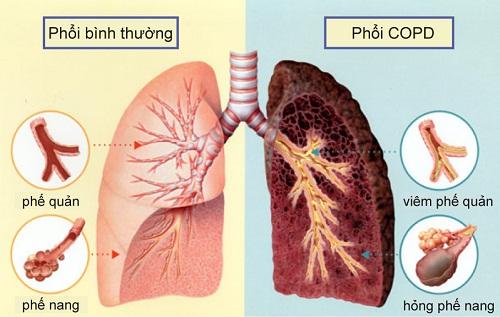 Mẫu bệnh án nội khoa lao phổi đầy đủ, chi tiết nhất