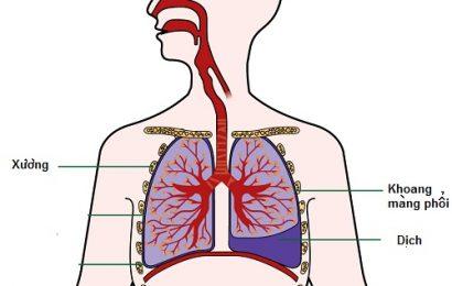 Bệnh án nội khoa tràn dịch màng phổi