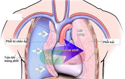 Bệnh án nội khoa tràn khí màng phổi