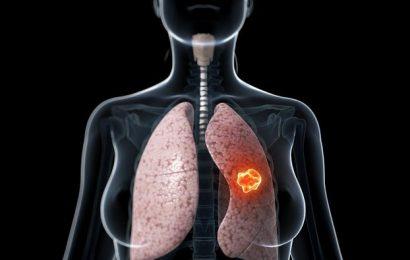 Danh sách những căn bệnh liên quan đến phổi có thể gây chết người