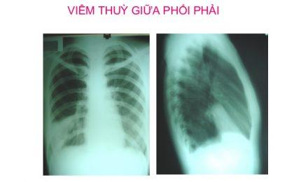 Mẫu bệnh án nội khoa viêm phổi thùy