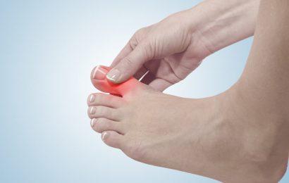 Kiến thức tổng quan về bệnh gout và cách phòng ngừa hiệu quả