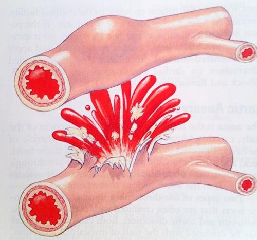 Biểu hiện lâm sàng điển hình của xuất huyết tiêu hóa