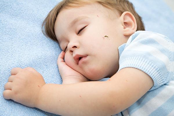 Nguyên nhân gây ra bệnh viêm não Nhật Bản ở trẻ em