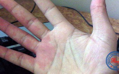 Bệnh học: Dấu hiệu bàn tay son
