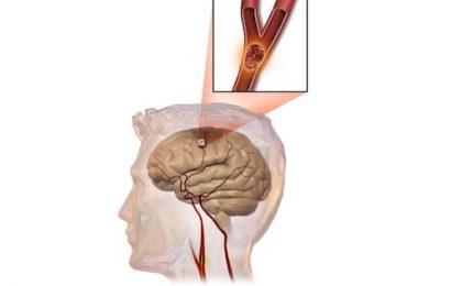 Bệnh án tai biến mạch máu não (Liệt Nửa Người) chuẩn nhất