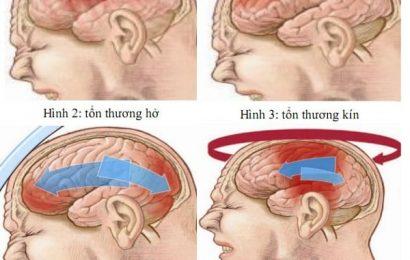Bệnh án chấn thương sọ não chuẩn nhất theo Bộ Y tế
